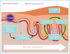 rozwój-łuszczycy1