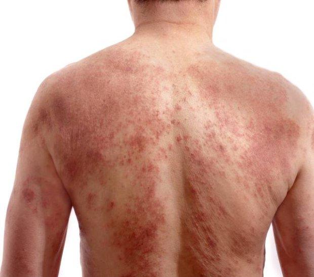 zapalenie skóry